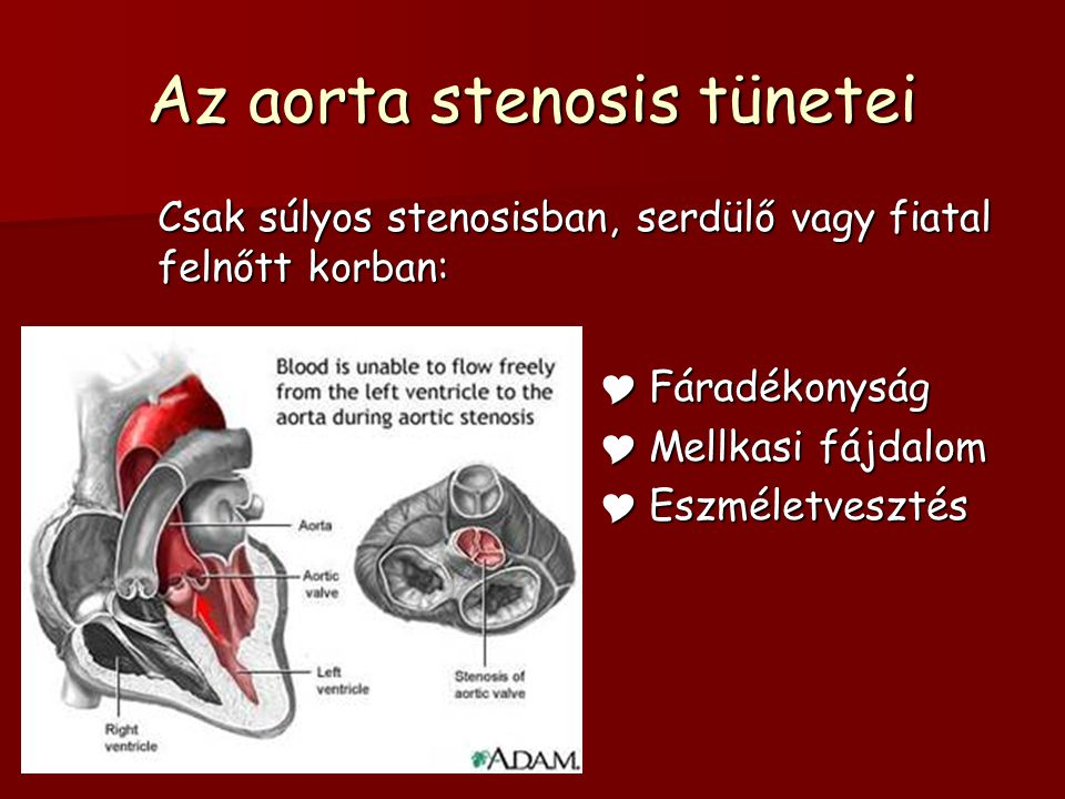 Az aorta stenosis tünetei