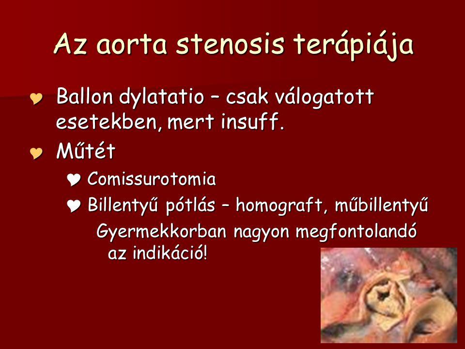 Az aorta stenosis terápiája