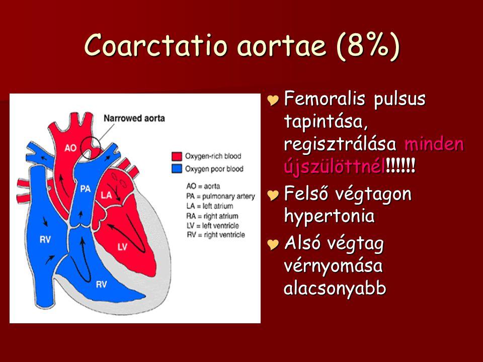 Coarctatio aortae (8%) Femoralis pulsus tapintása, regisztrálása minden újszülöttnél!!!!!! Felső végtagon hypertonia.