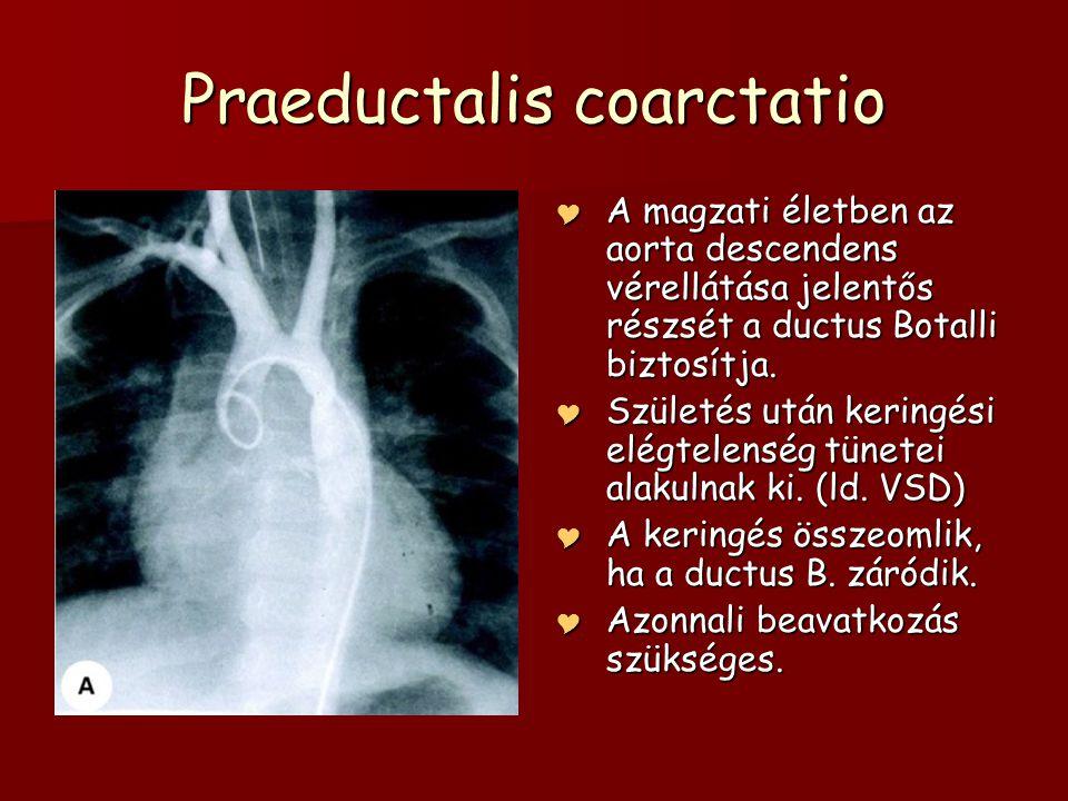 Praeductalis coarctatio