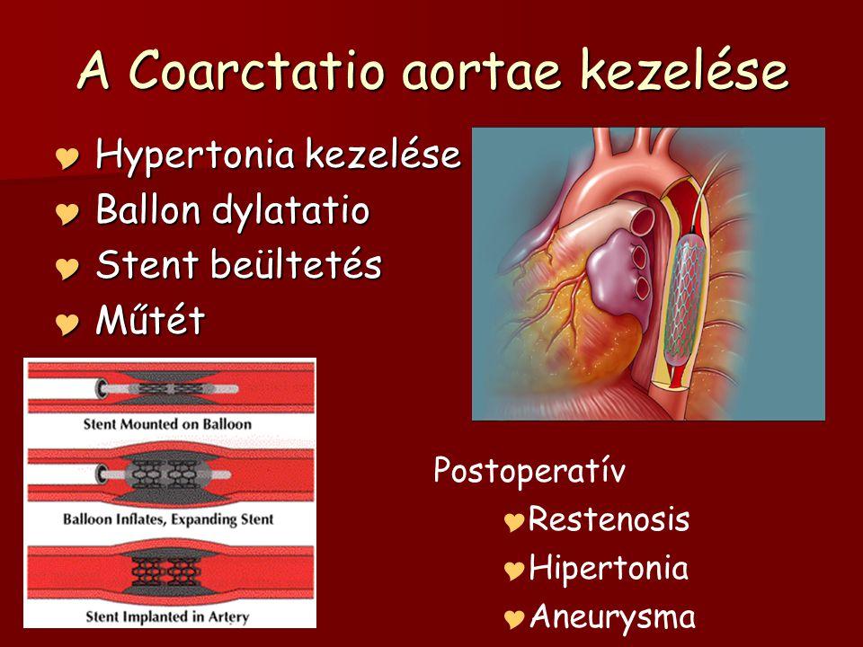 A Coarctatio aortae kezelése