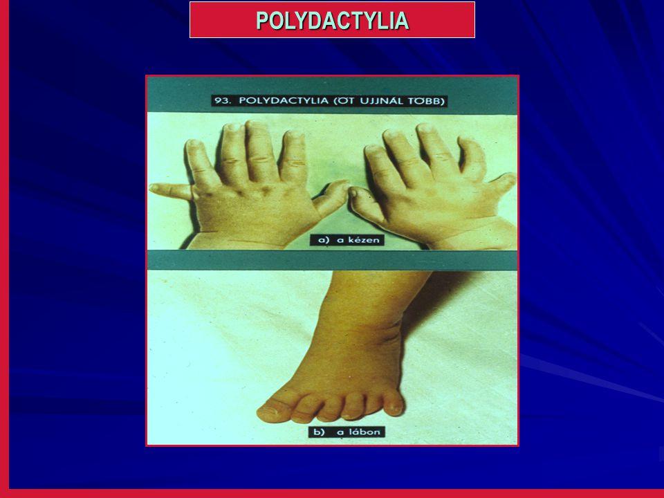 POLYDACTYLIA