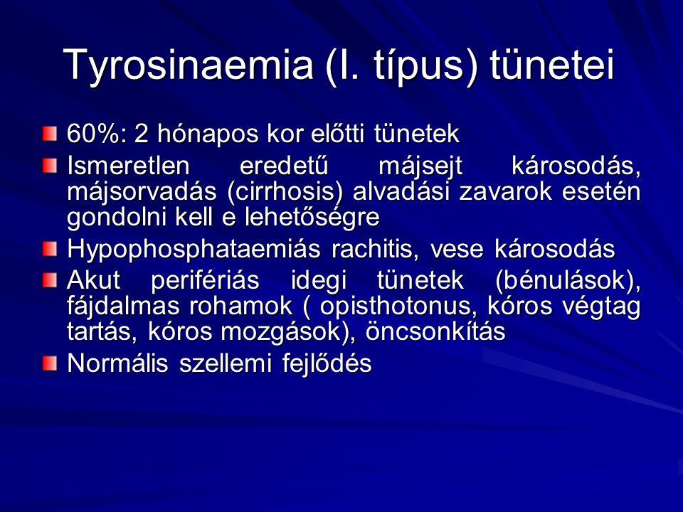 Tyrosinaemia (I. típus) tünetei