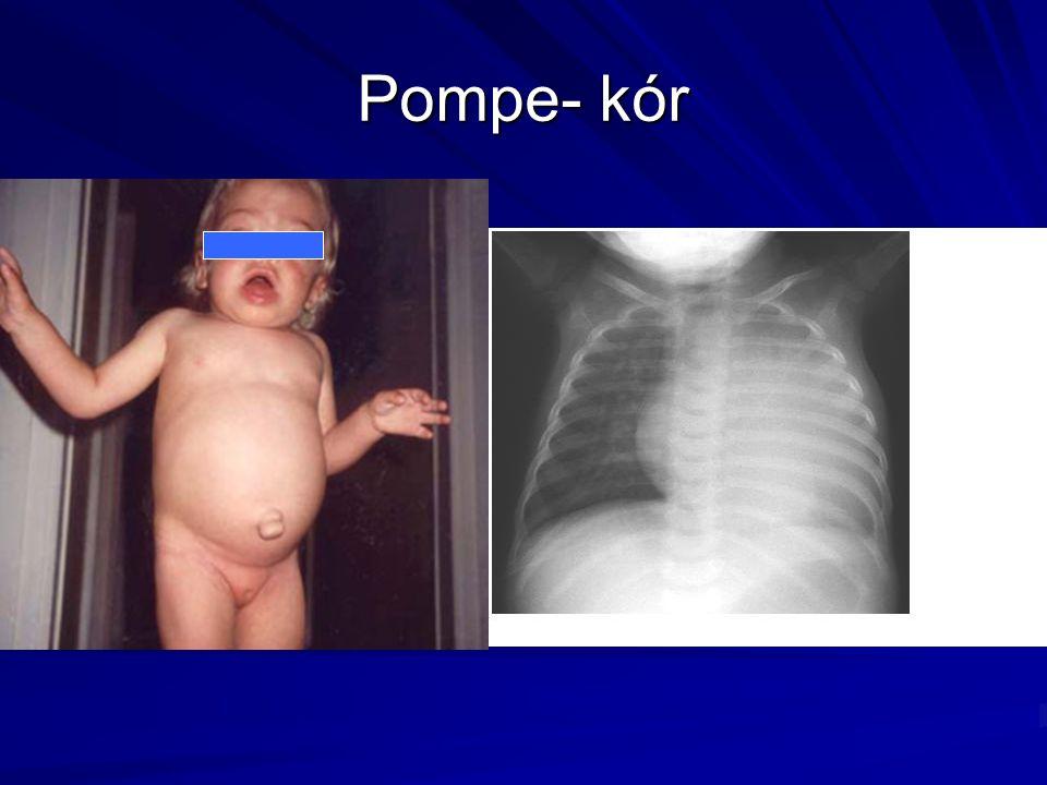 Pompe- kór