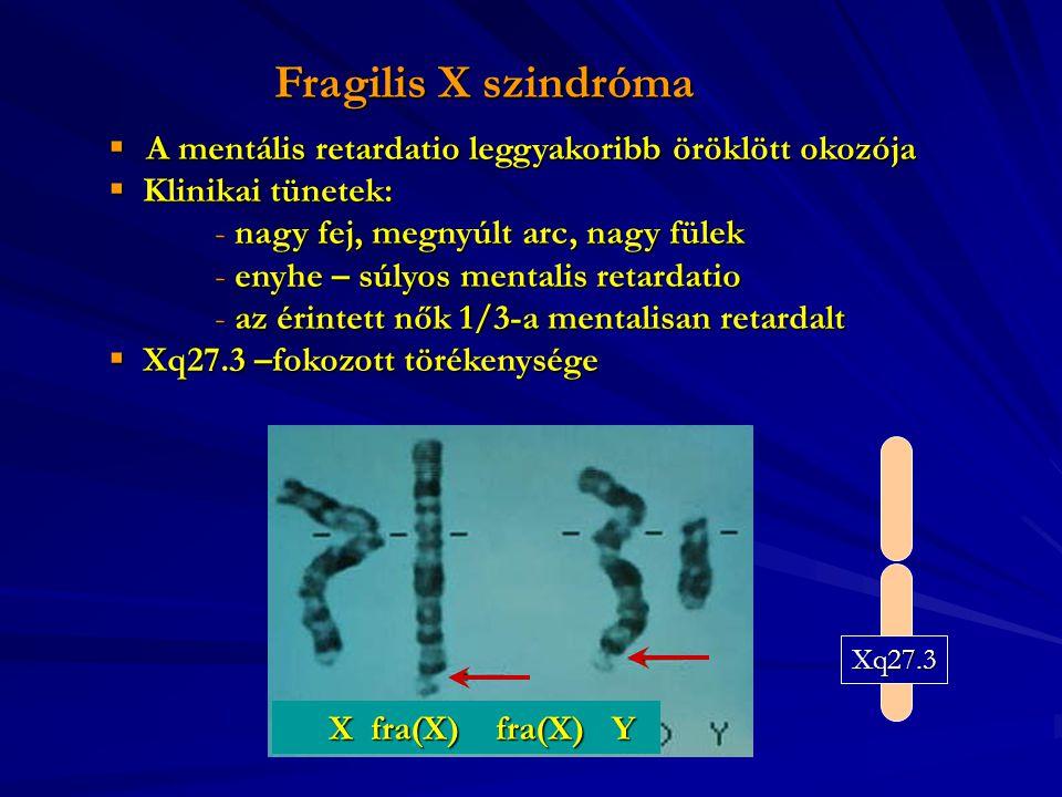 Fragilis X szindróma A mentális retardatio leggyakoribb öröklött okozója. Klinikai tünetek: nagy fej, megnyúlt arc, nagy fülek.