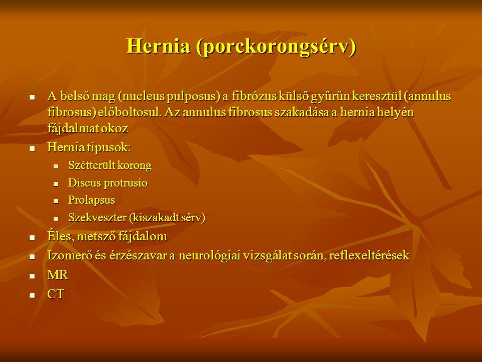 Hernia (porckorongsérv)