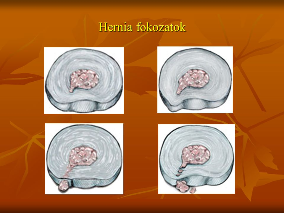 Hernia fokozatok
