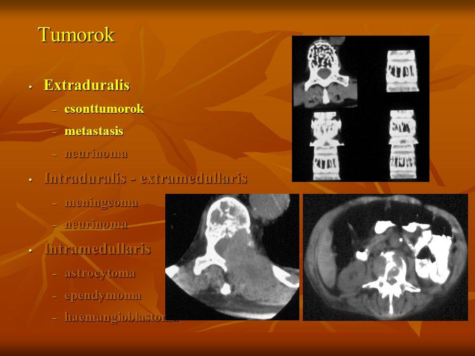 Tumorok Extraduralis Intraduralis - extramedullaris Intramedullaris