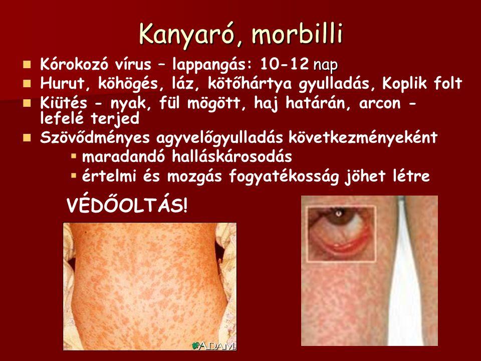 Kanyaró, morbilli VÉDŐOLTÁS! Kórokozó vírus – lappangás: 10-12 nap