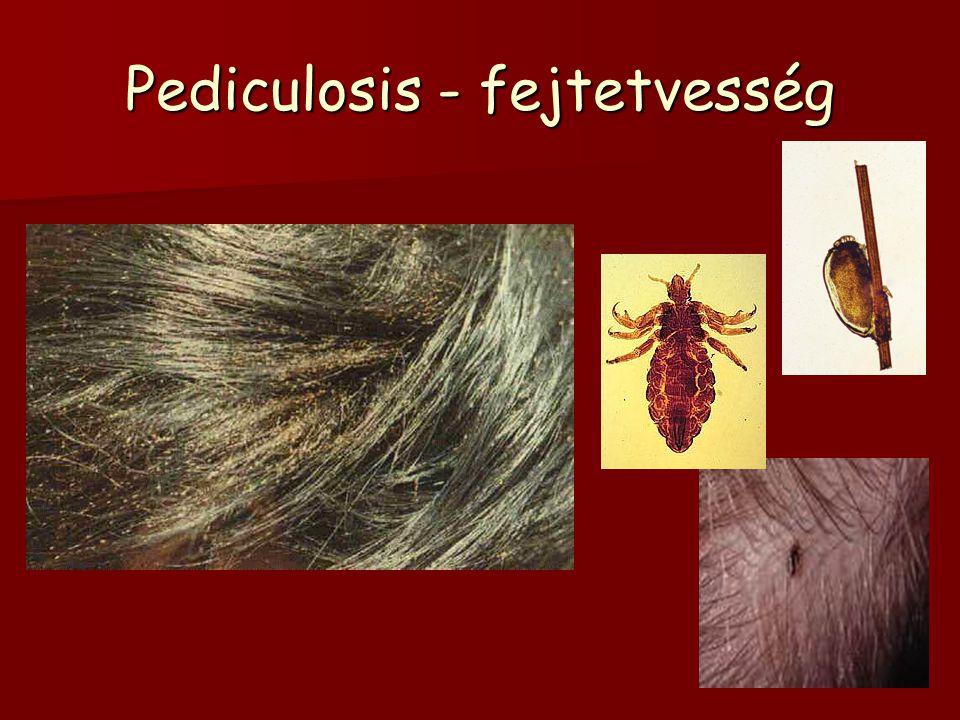 Pediculosis - fejtetvesség