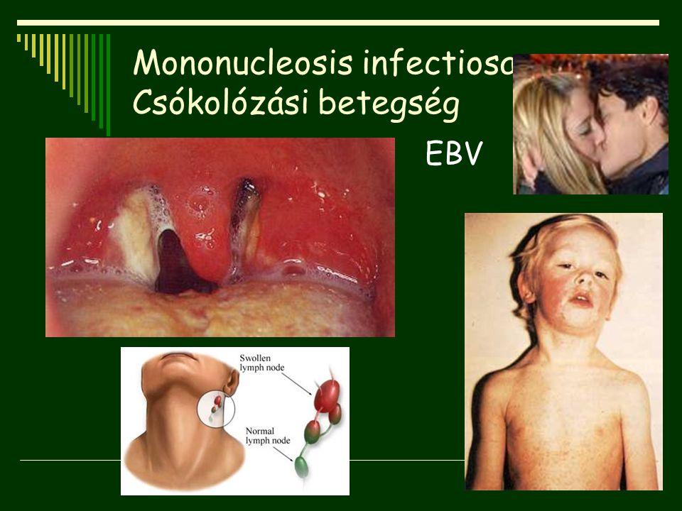 Mononucleosis infectiosa Csókolózási betegség