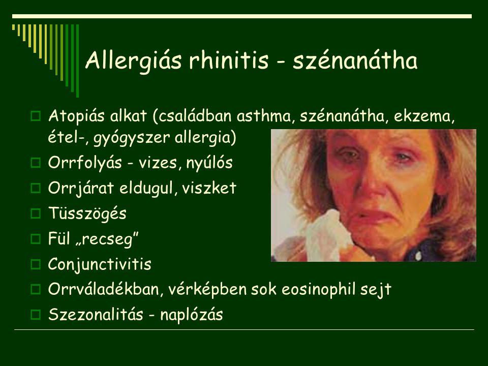 Allergiás rhinitis - szénanátha