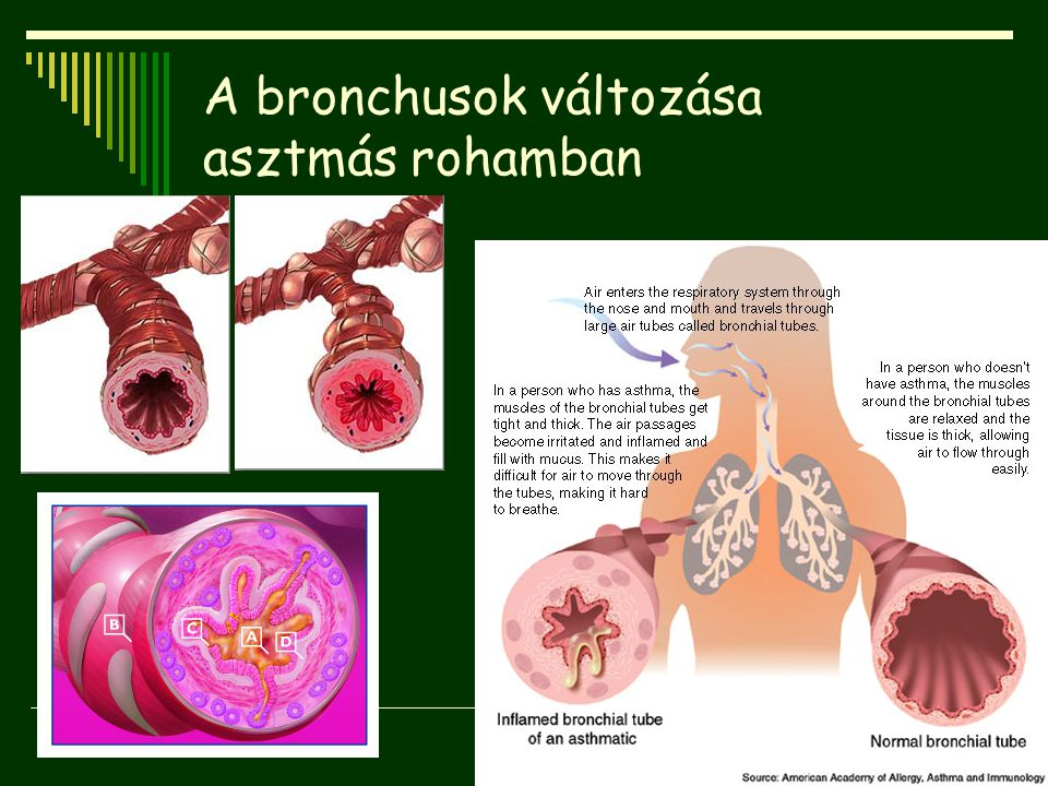 A bronchusok változása asztmás rohamban