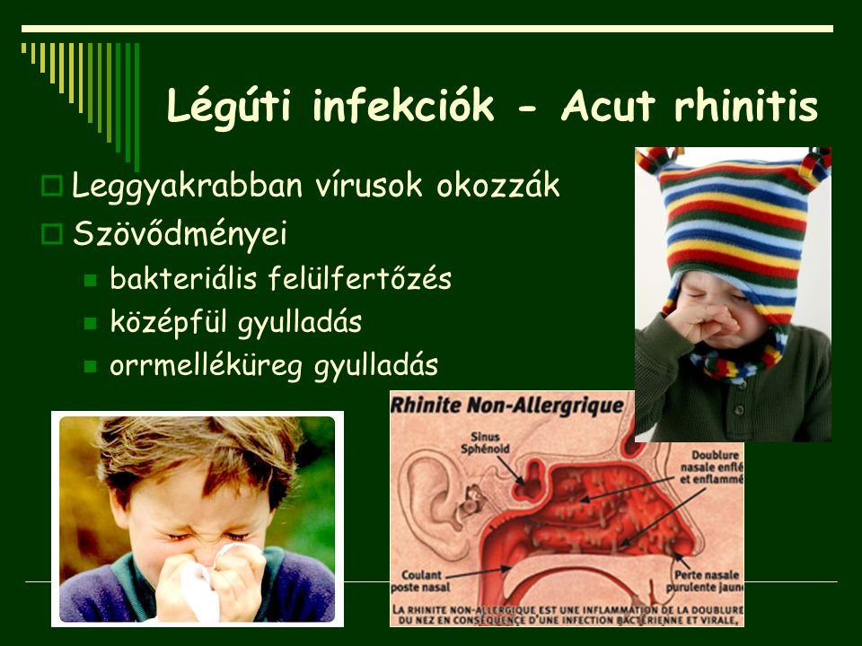 Légúti infekciók - Acut rhinitis