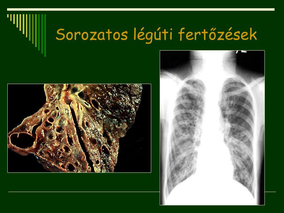 Sorozatos légúti fertőzések