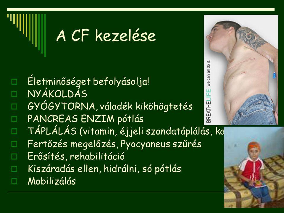 A CF kezelése Életminőséget befolyásolja! NYÁKOLDÁS