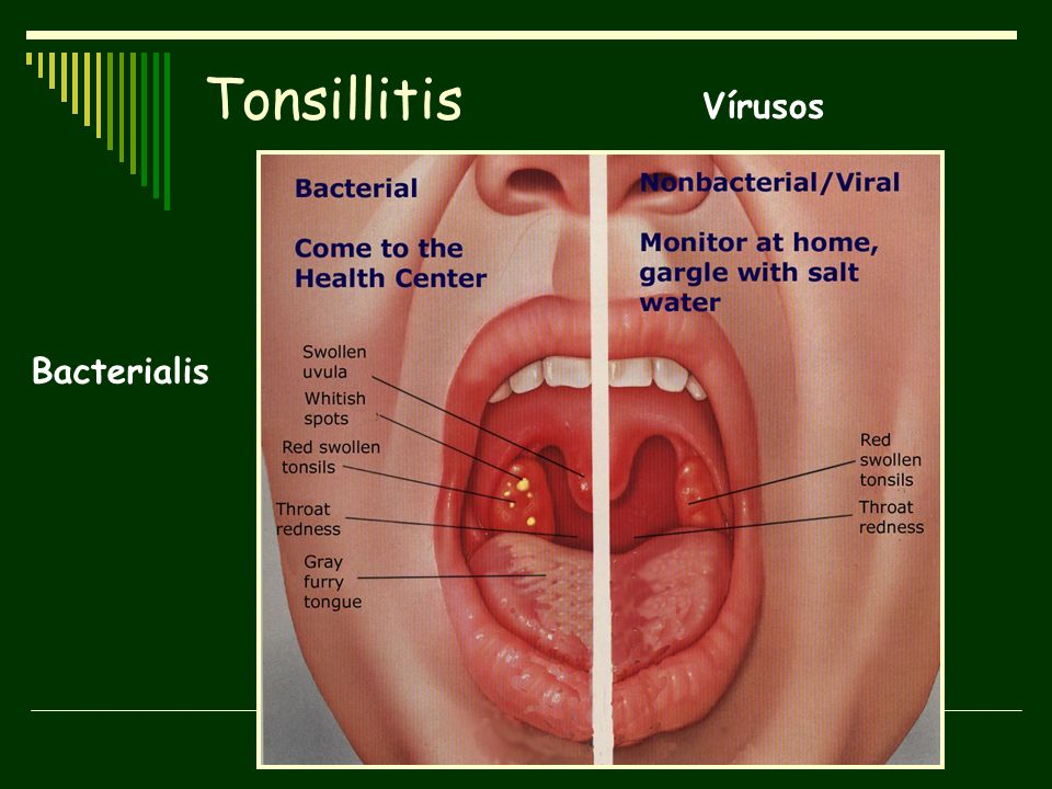 Tonsillitis Vírusos Bacterialis