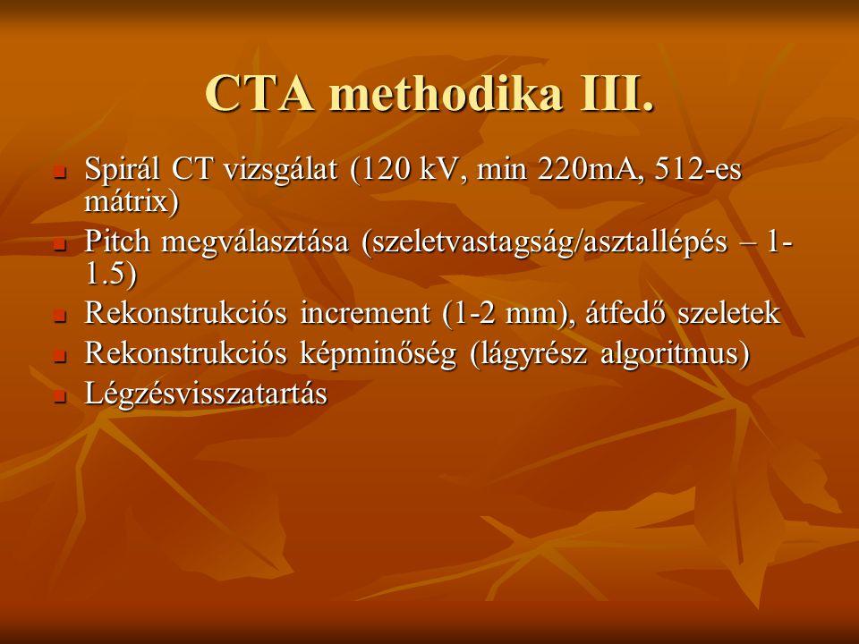 CTA methodika III. Spirál CT vizsgálat (120 kV, min 220mA, 512-es mátrix) Pitch megválasztása (szeletvastagság/asztallépés – 1-1.5)