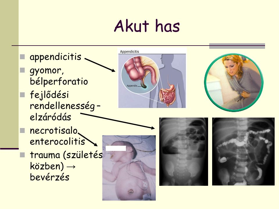 Akut has appendicitis gyomor, bélperforatio