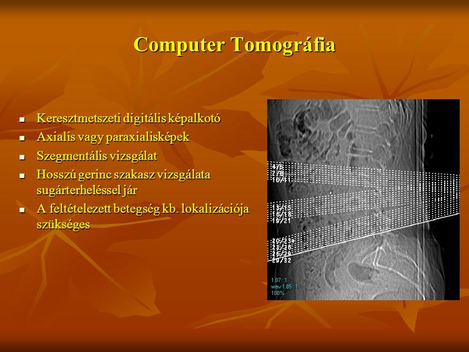 Computer Tomográfia Keresztmetszeti digitális képalkotó