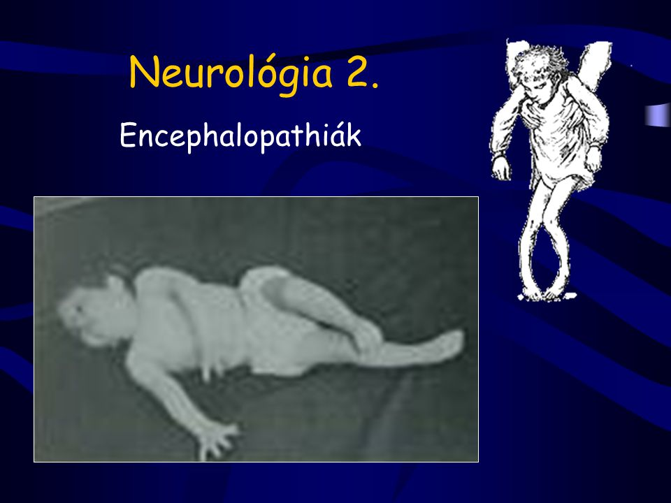 Neurológia 2. Encephalopathiák