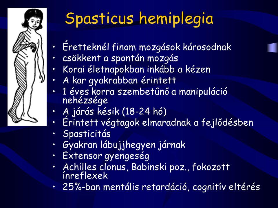 Spasticus hemiplegia Éretteknél finom mozgások károsodnak