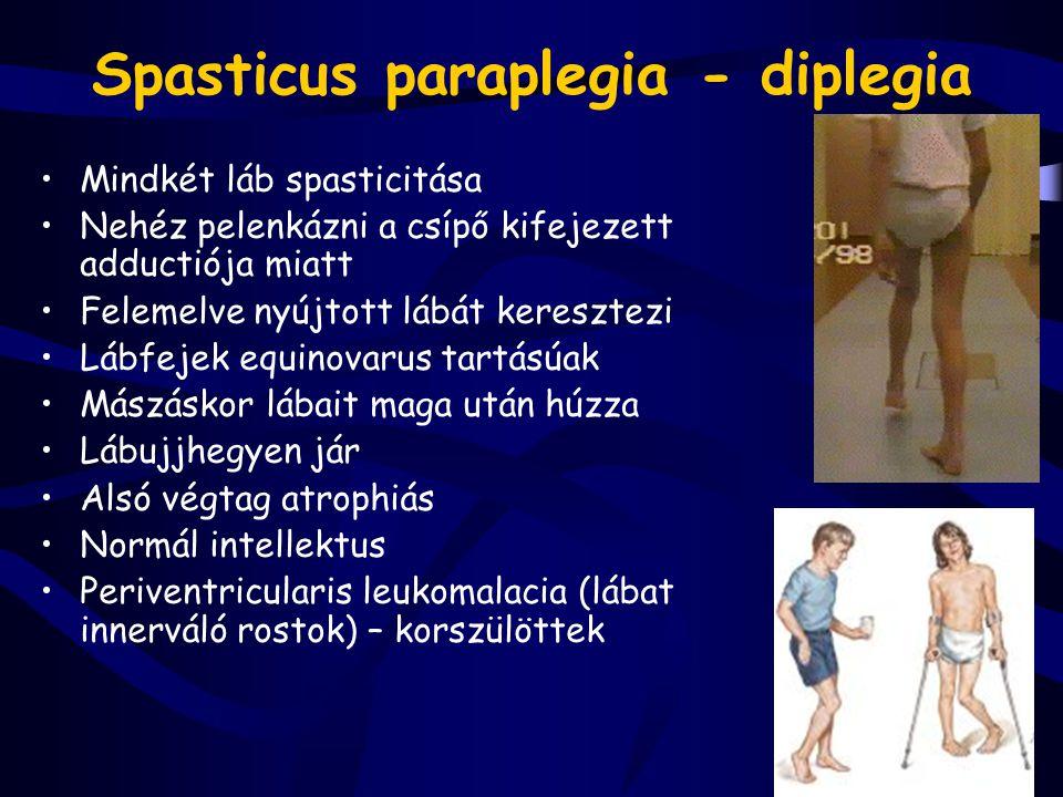 Spasticus paraplegia - diplegia