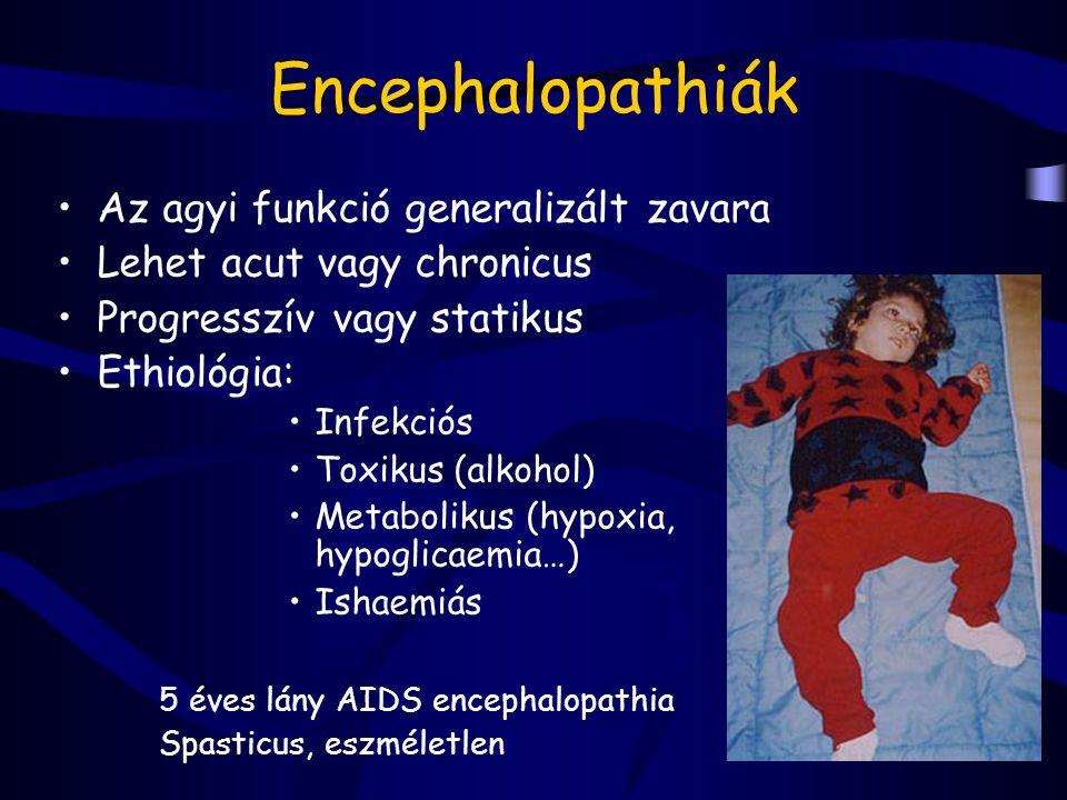 Encephalopathiák Az agyi funkció generalizált zavara