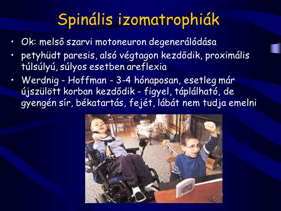 Spinális izomatrophiák