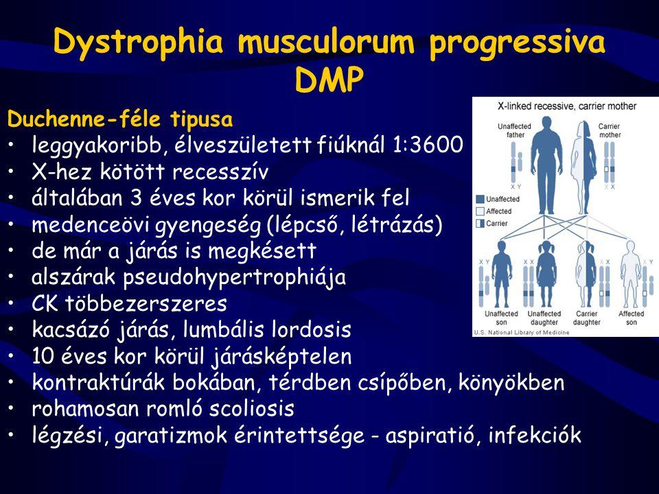 Dystrophia musculorum progressiva DMP