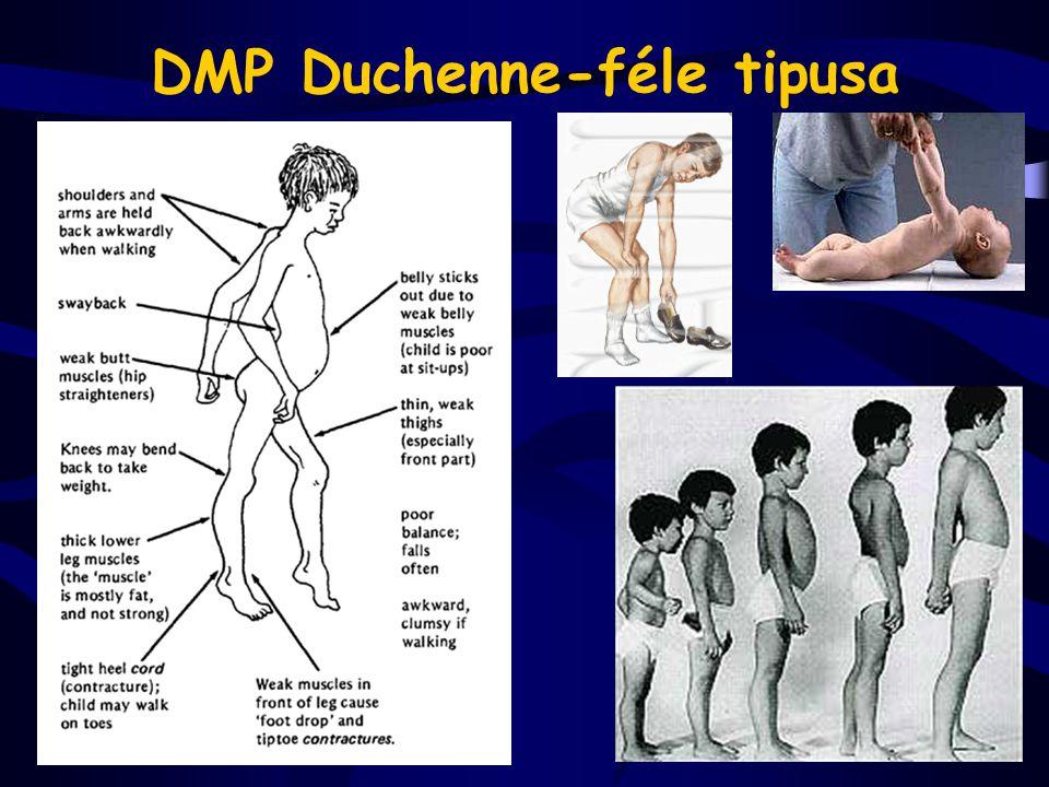 DMP Duchenne-féle tipusa