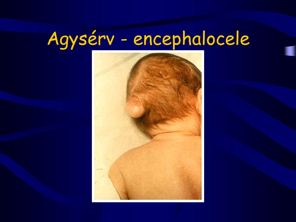 Agysérv - encephalocele
