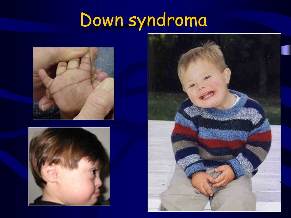 Down syndroma