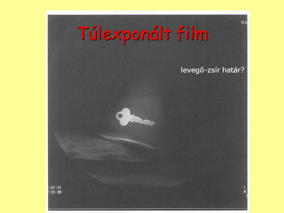 Túlexponált film levegő-zsír határ