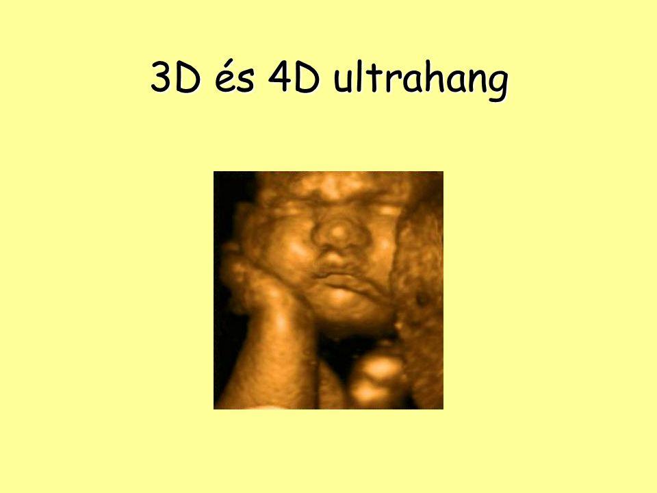 3D és 4D ultrahang