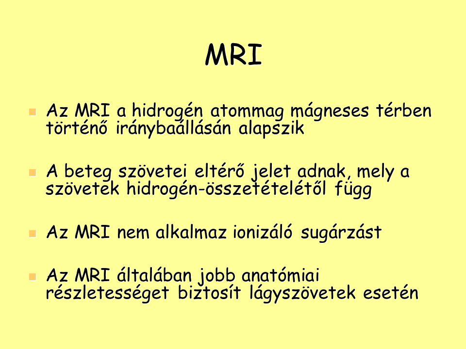 MRI Az MRI a hidrogén atommag mágneses térben történő iránybaállásán alapszik.