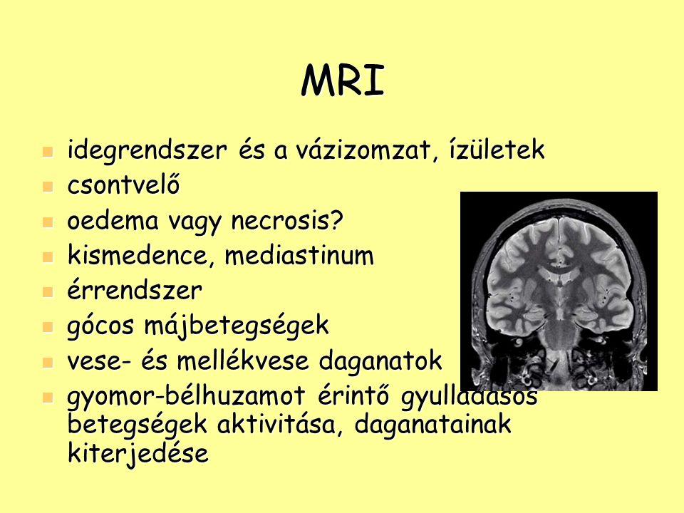 MRI idegrendszer és a vázizomzat, ízületek csontvelő