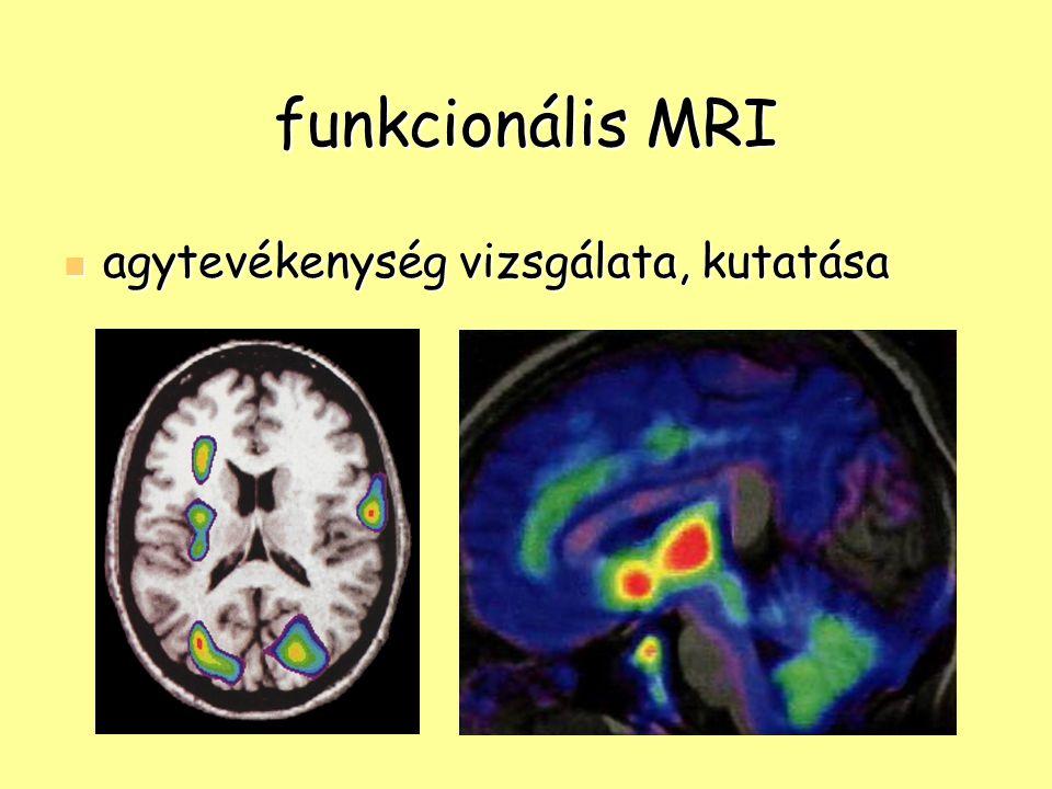 funkcionális MRI agytevékenység vizsgálata, kutatása