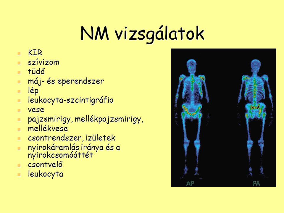 NM vizsgálatok KIR szívizom tüdő máj- és eperendszer lép