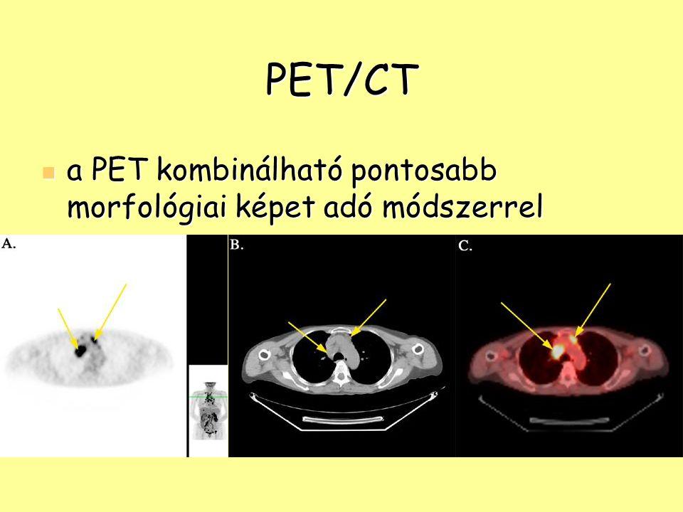 PET/CT a PET kombinálható pontosabb morfológiai képet adó módszerrel