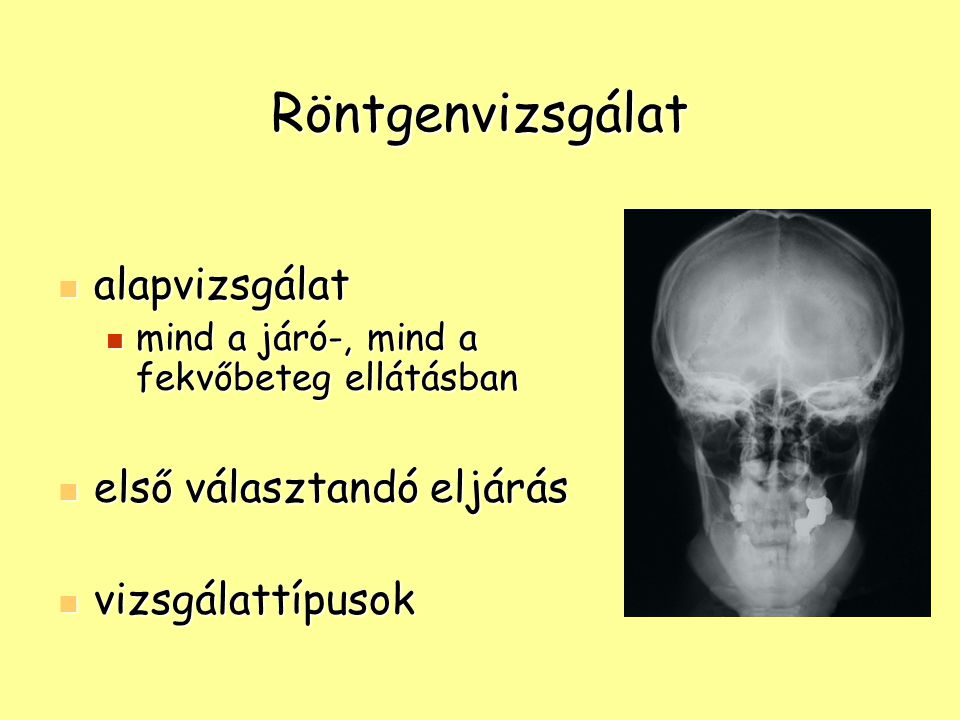 Röntgenvizsgálat alapvizsgálat első választandó eljárás