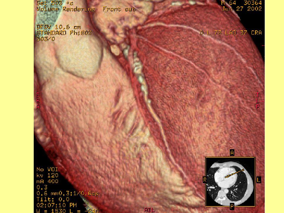 3D CT-rekonstrukció