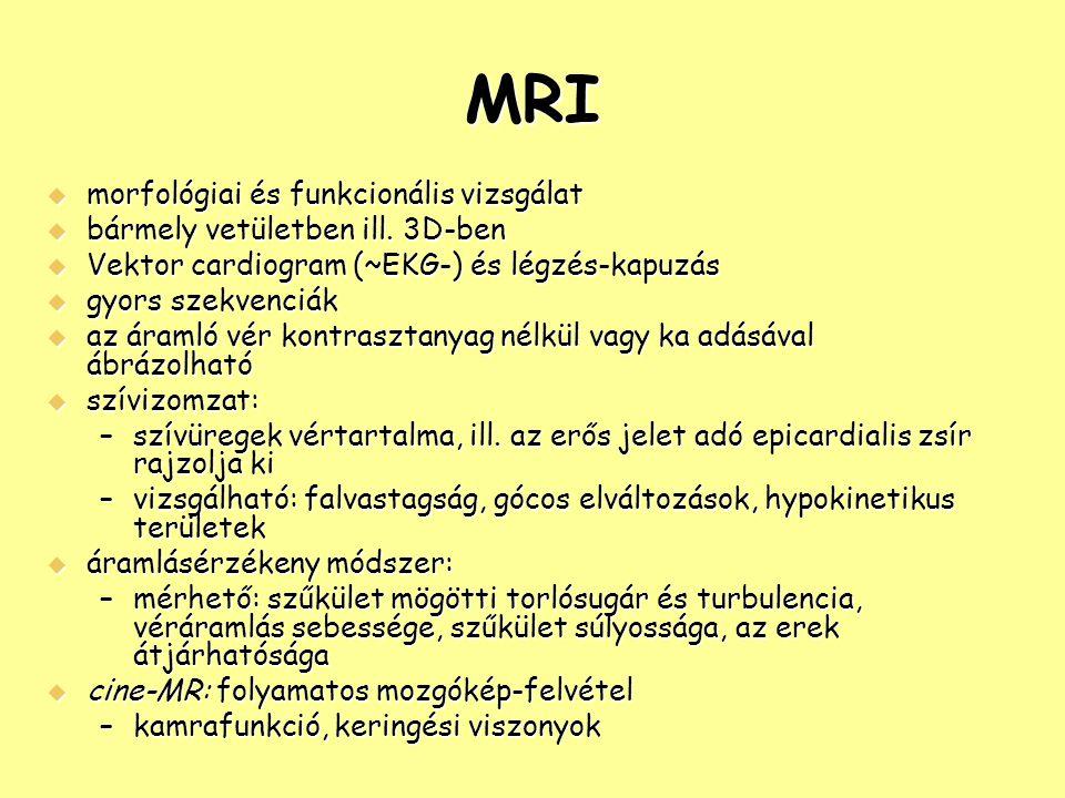 MRI morfológiai és funkcionális vizsgálat