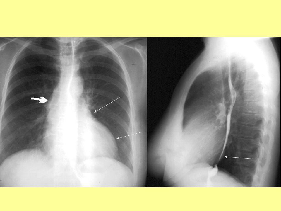 AoS - Kétirányú szívfelvétel: A bal kamra hypertrophiája miatt a szívöböl kimélyült, a felszálló aortán poststenoticus dilatatio (nyíl) van.