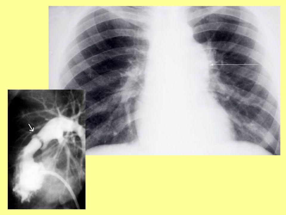 Pulmonalis valvularis stenosis