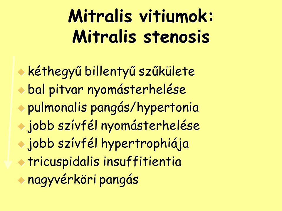 Mitralis vitiumok: Mitralis stenosis
