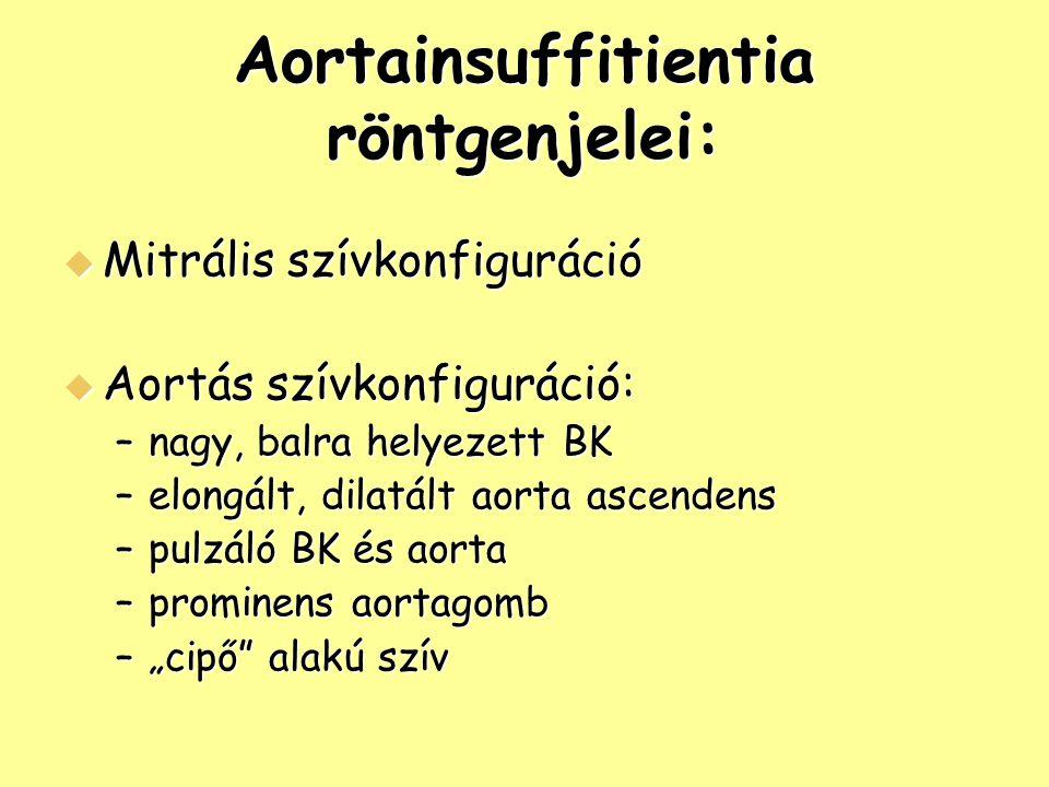 Aortainsuffitientia röntgenjelei: