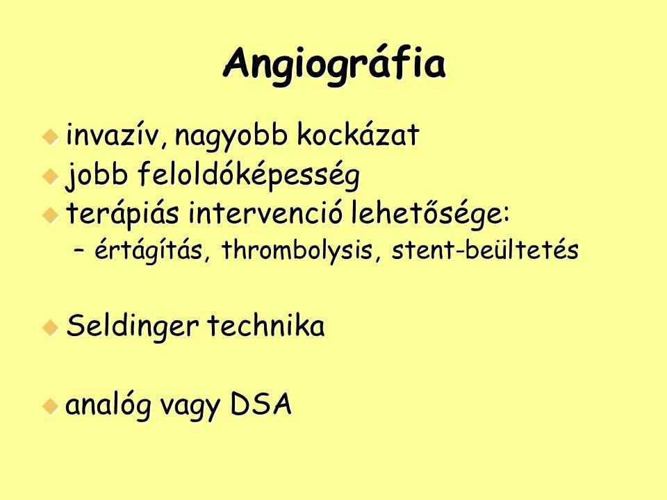 Angiográfia invazív, nagyobb kockázat jobb feloldóképesség