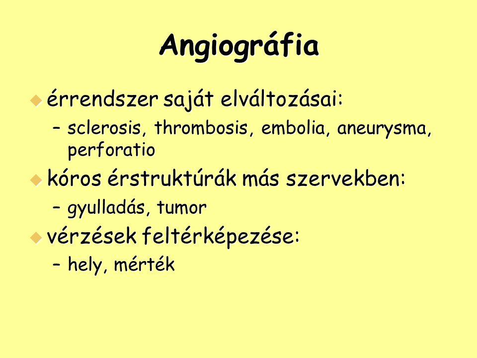 Angiográfia érrendszer saját elváltozásai: