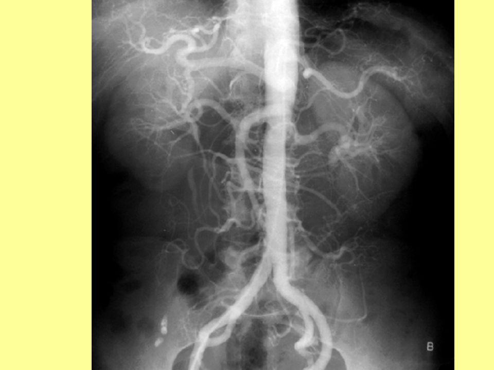 Áttekintő hasi aortogram
